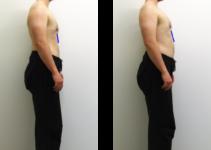 posture debout côtes