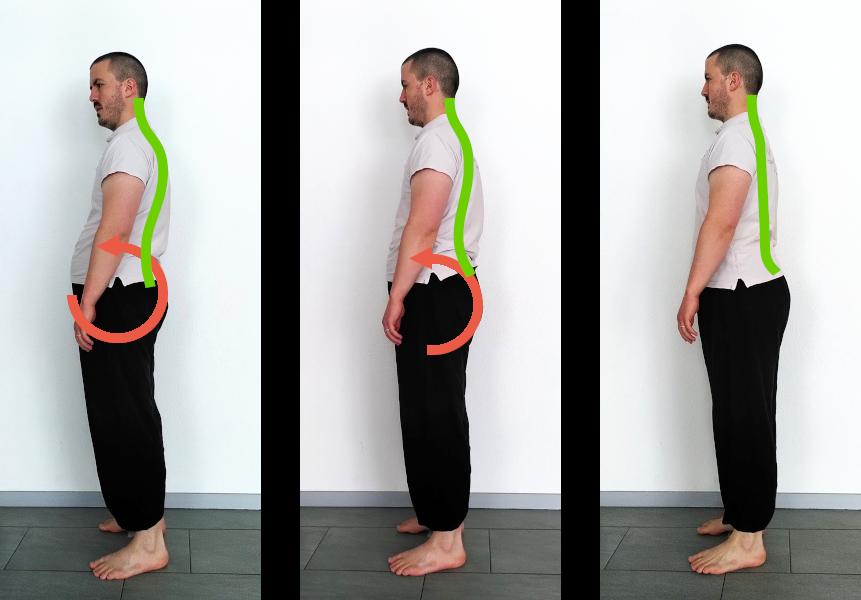 posture debout antéversion bassin